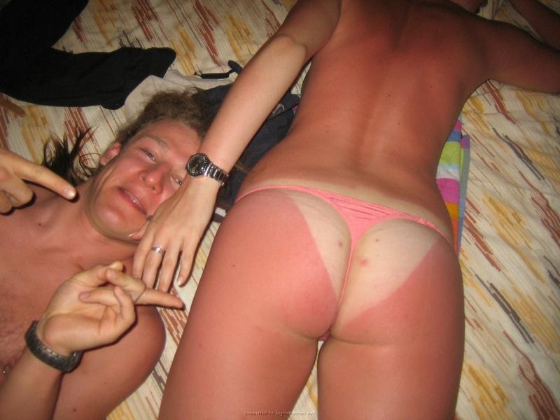 Пошлая девка обгорела на берегу моря